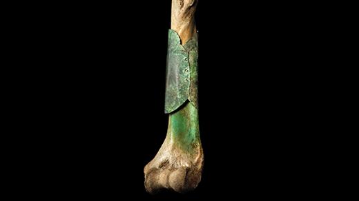 Bild för Före värktablettens tid, 2020-03-11, Historiska museet